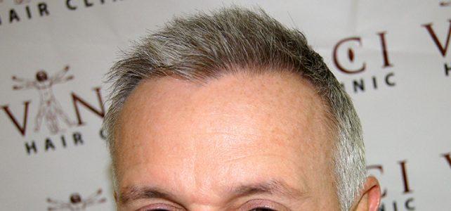 FUE hair transplant Bristol
