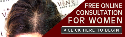 Free Online Hair Loss Consultation Women