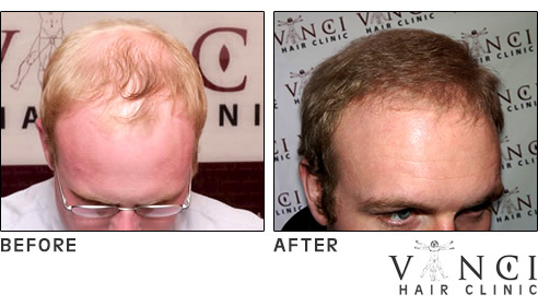 Vinci Max Hair Transplant