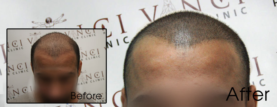 Ultimate Hair Transplant and Scalp Pigmentation Procedure