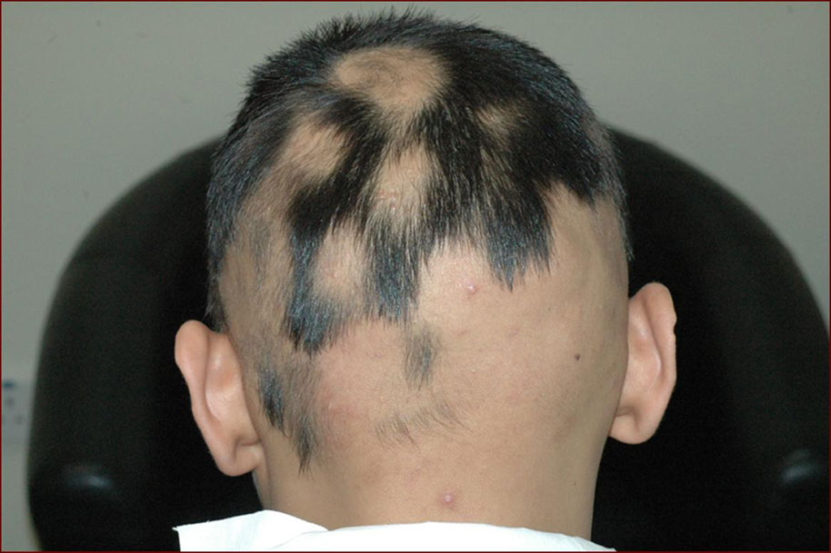 Why Hair Transplant Surgery Is Not A Suitable Remedy For