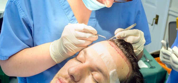 Hair Transplants: The Questions to Ask