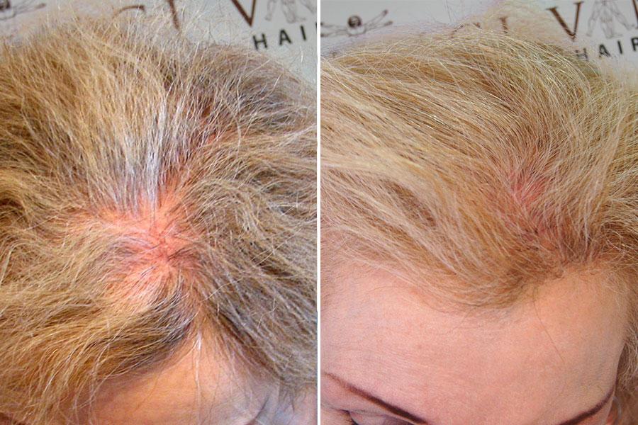 Annette Hair Transplant