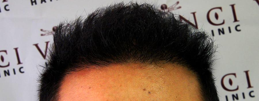 FUE Hair Transplant Leeds