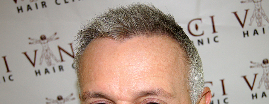 A great hair transplant