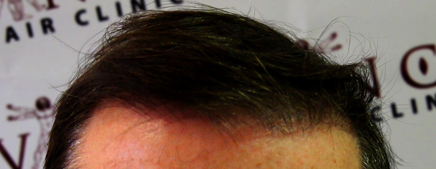 FUT Hair Transplant Glasgow