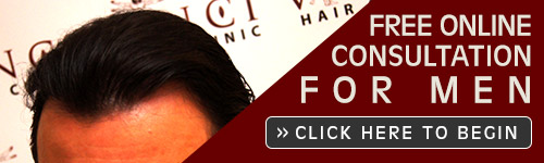 Free Online Hair Loss Consultation Men