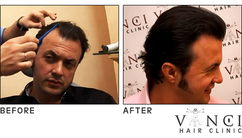 Hair transplant procedure time