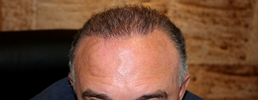 Hair Transplant Madrid