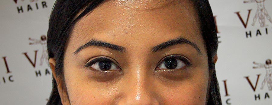 Eyebrow Transplant Vinci Hair Clinic