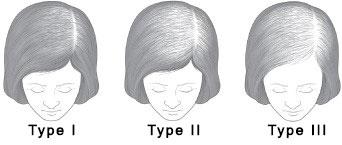 Female Hair Loss Types