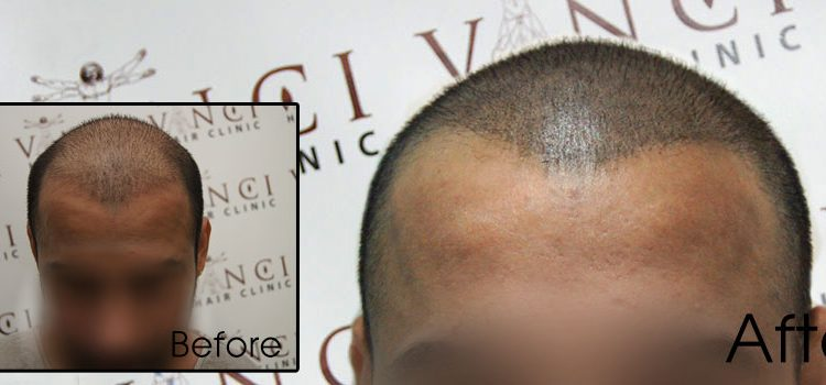 Is hair loss linked to prostate cancer?