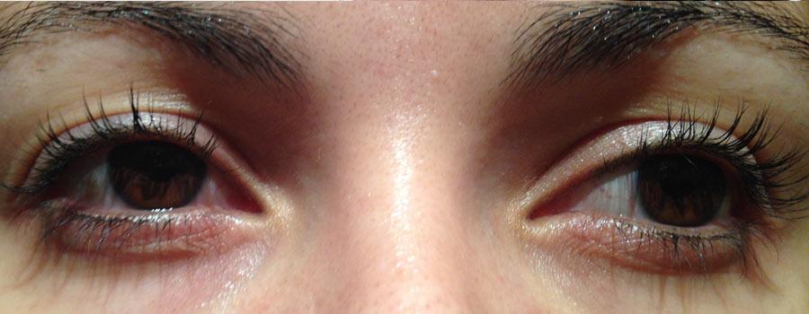 Eyelash Transplant Vinci Hair Clinic