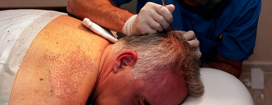 Hair Transplant from body hairs.