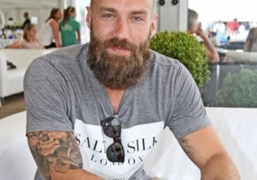 Calum Best – Is He Addicted to Hair Transplants?