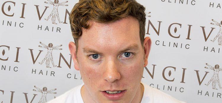 Adam Purlands Hair Transplant Testimonial