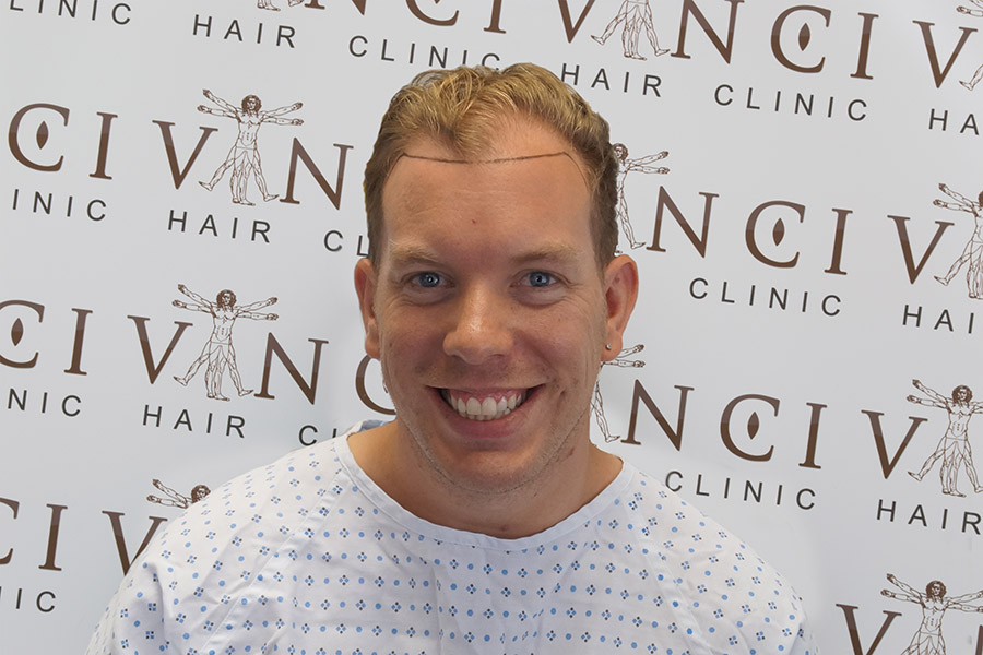 Male Hair Transplant Results - Vinci Hair Transplant