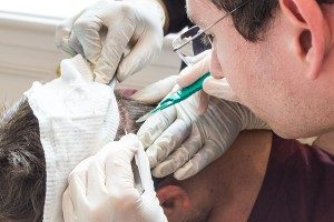 are-hair-transplant-scars-visible-2-300x200
