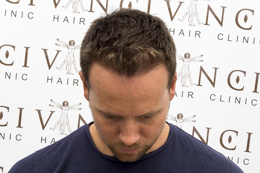 Dan After
