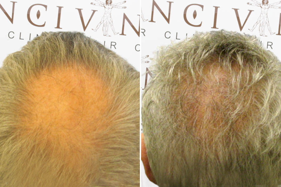 Malcolm Before and After Hair Transplant