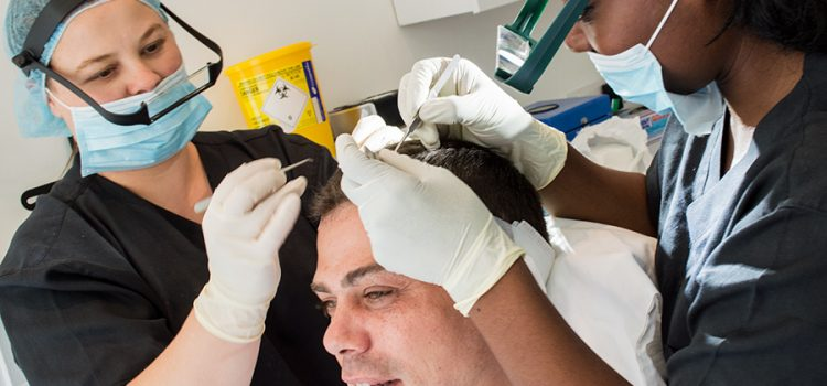 Considerations Before Having A Hair Transplant
