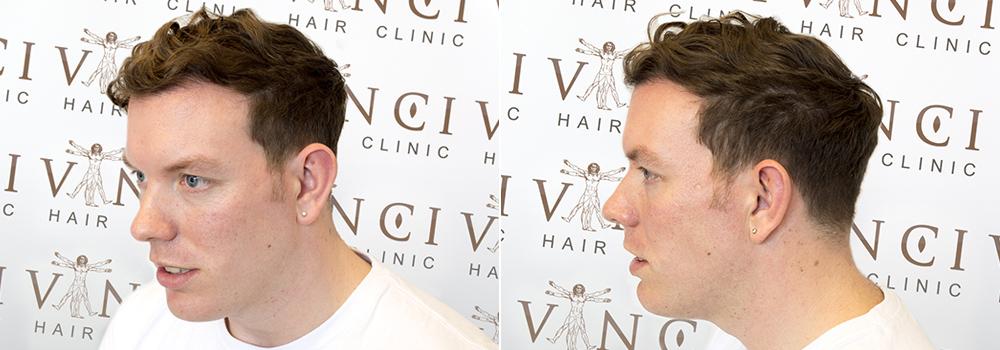 Hair Transplant Testimonial - Adam Purland
