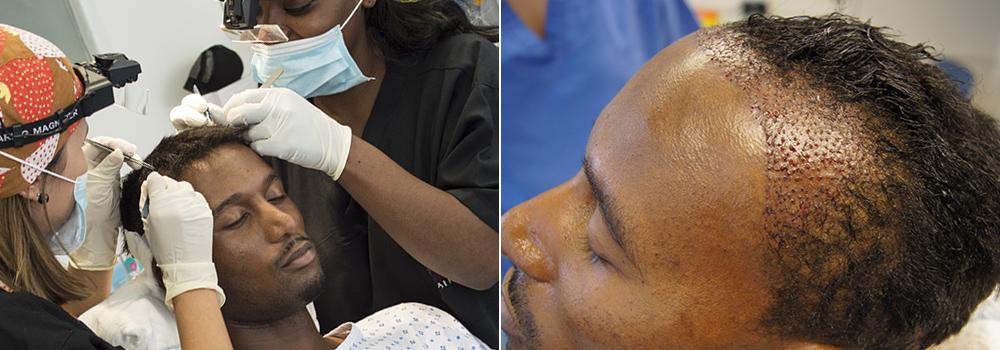 Hair Transplant Testimonial Remi