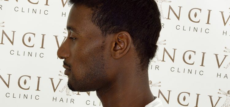How Many Hair Grafts Should You Expect During A hair Transplant?